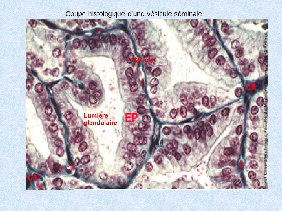 Coupe histologique d'une vésicule séminale