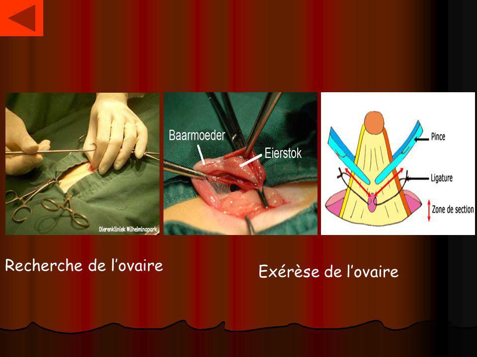 Recherche de l'ovaire Exérèse de l'ovaire