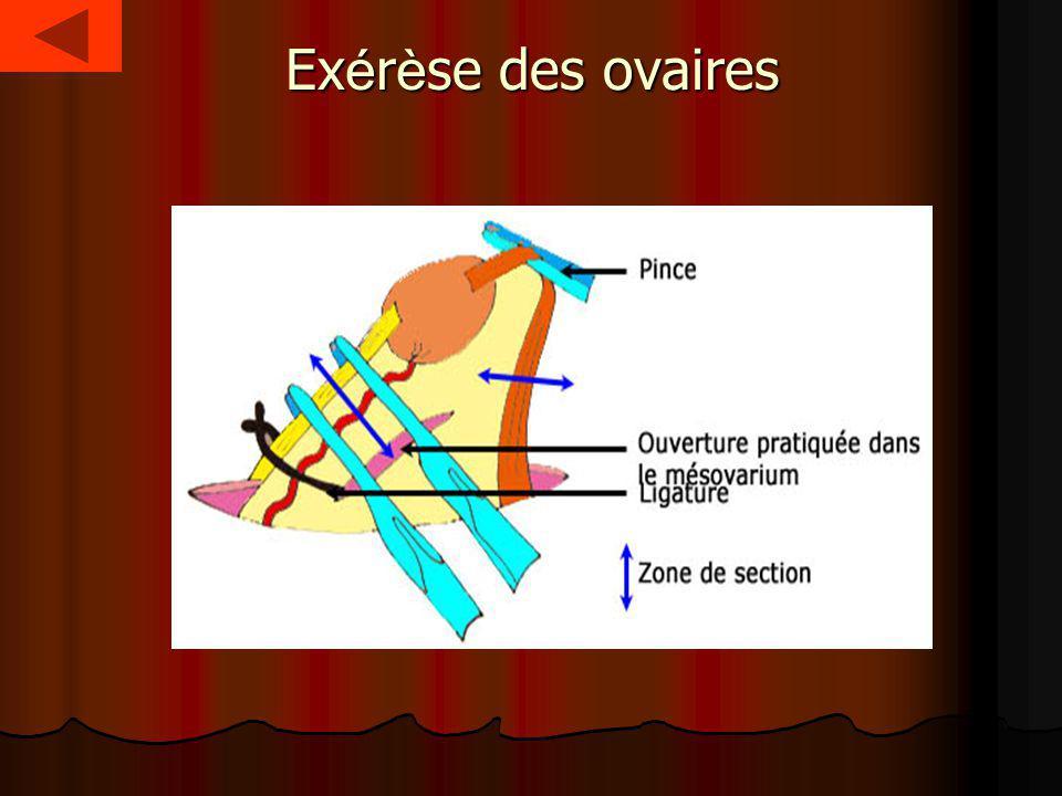 Exérèse des ovaires