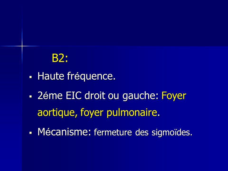 B2: Haute fréquence. 2éme EIC droit ou gauche: Foyer aortique, foyer pulmonaire.