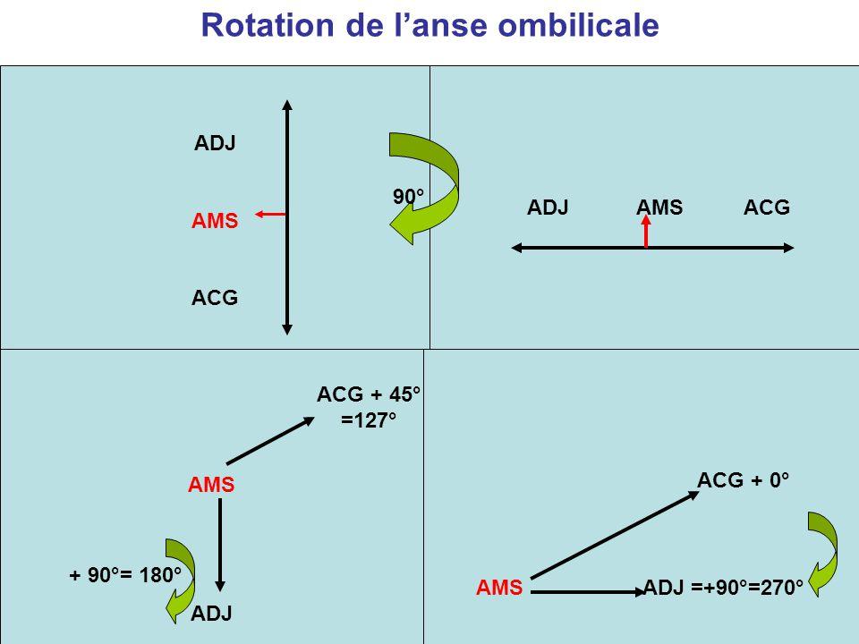 Rotation de l'anse ombilicale