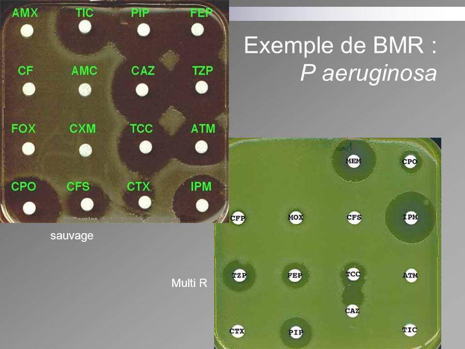 Exemple de BMR : P aeruginosa