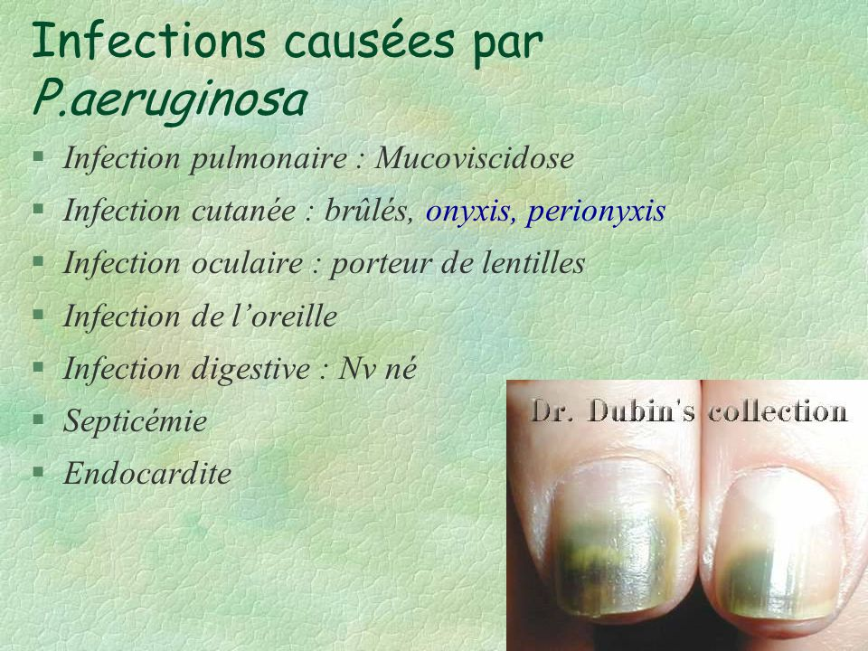 Infections causées par P.aeruginosa