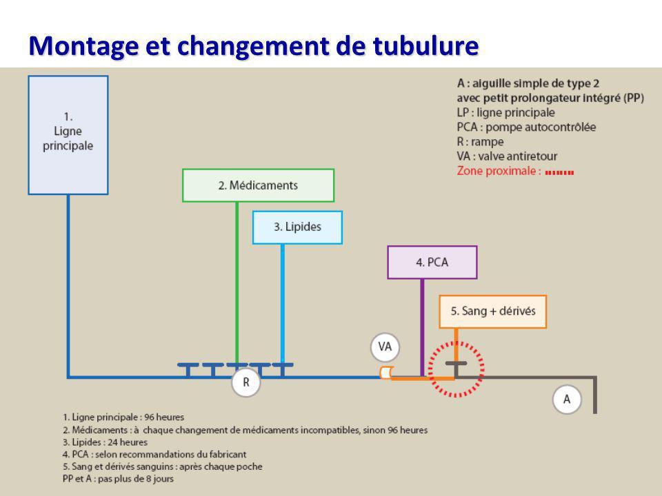 Montage et changement de tubulure