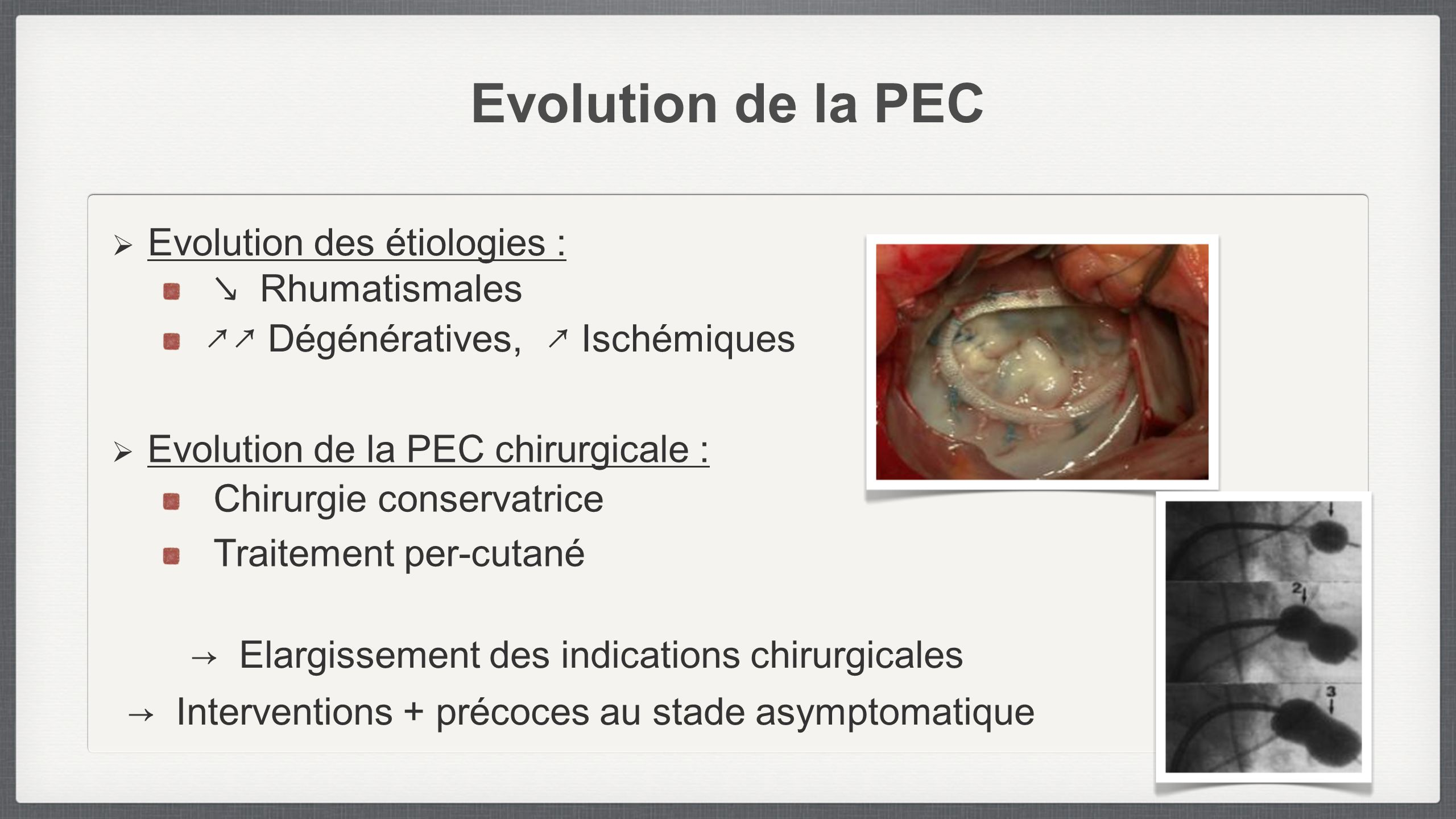 Evolution de la PEC Evolution des étiologies : ↘ Rhumatismales