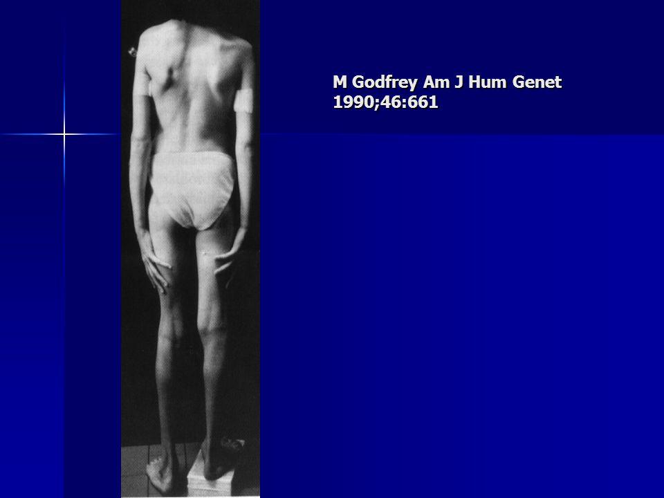 M Godfrey Am J Hum Genet 1990;46:661