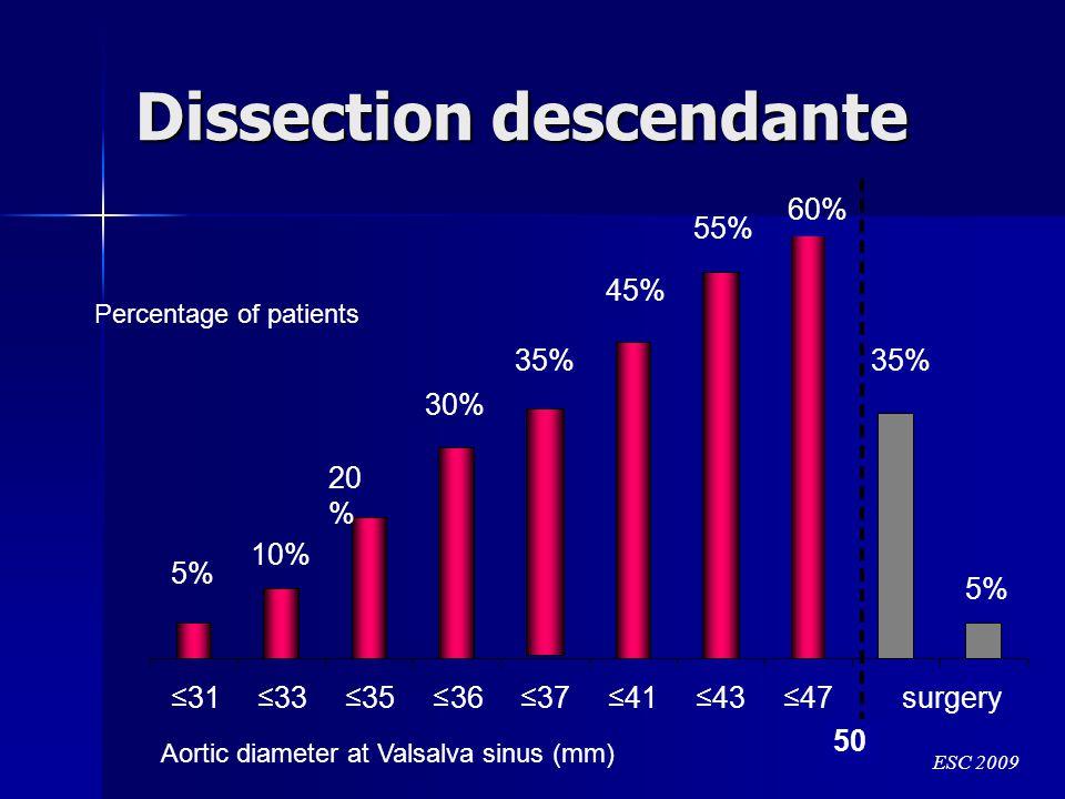 Dissection descendante