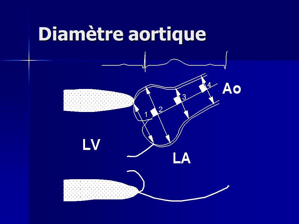 Diamètre aortique
