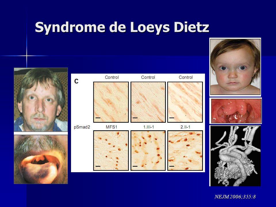 Syndrome de Loeys Dietz
