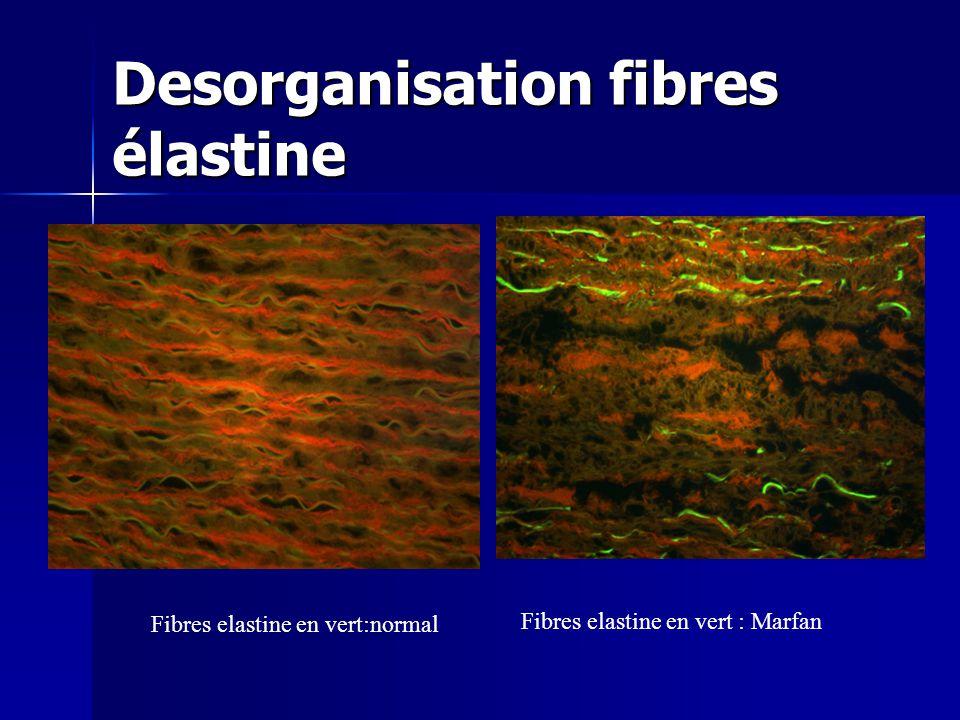 Desorganisation fibres élastine