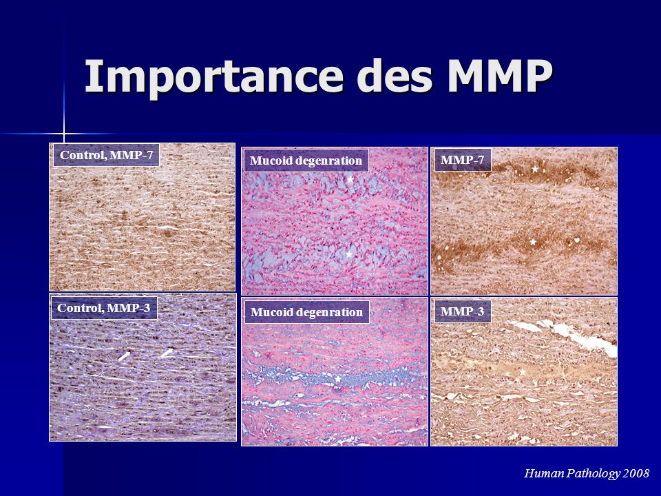Importance des MMP Control, MMP-7 Mucoid degenration MMP-7