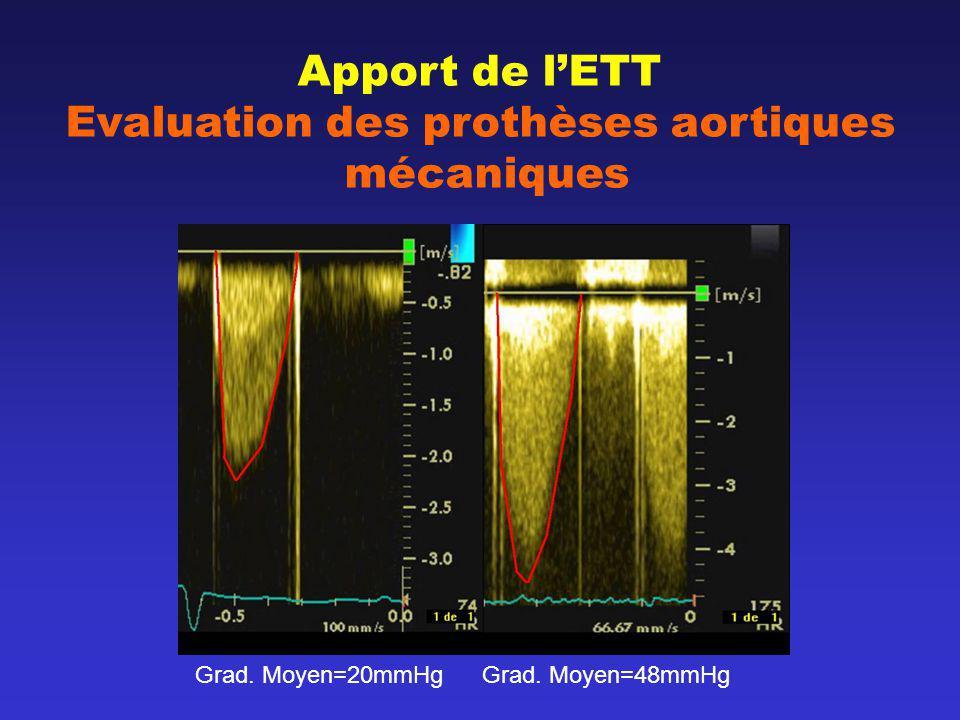 Apport de l'ETT Evaluation des prothèses aortiques