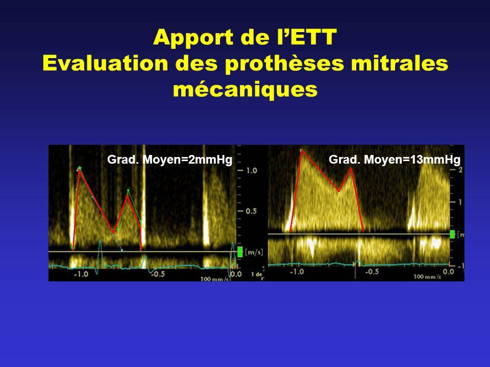 Apport de l'ETT Evaluation des prothèses mitrales mécaniques