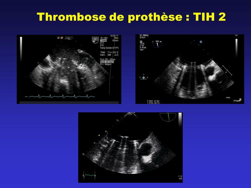 Thrombose de prothèse : TIH 2
