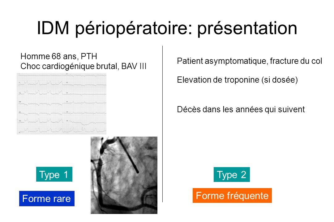 IDM périopératoire: présentation