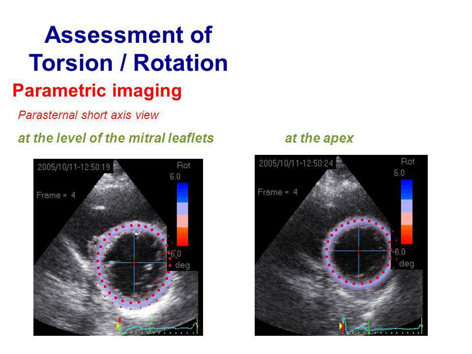 Assessment of Torsion / Rotation