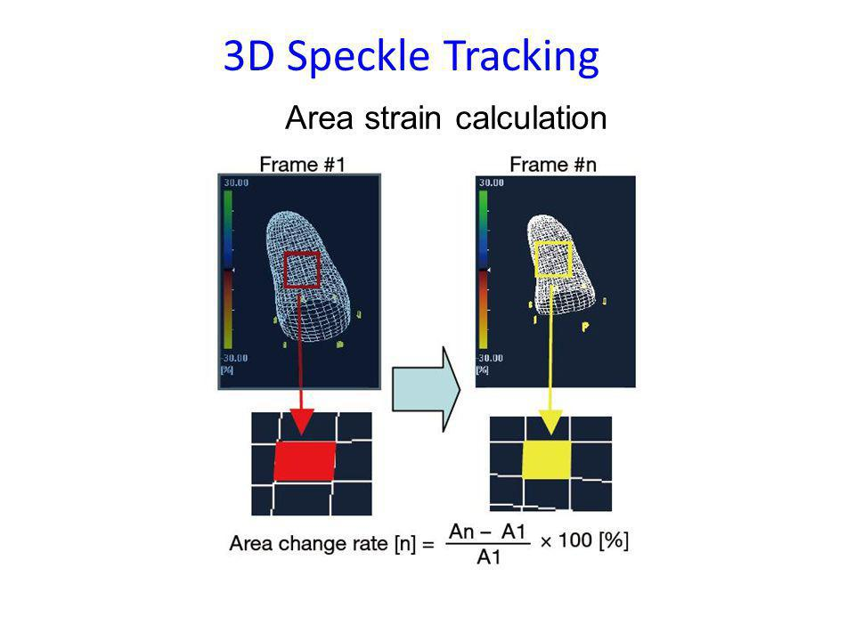 3D Speckle Tracking Area strain calculation