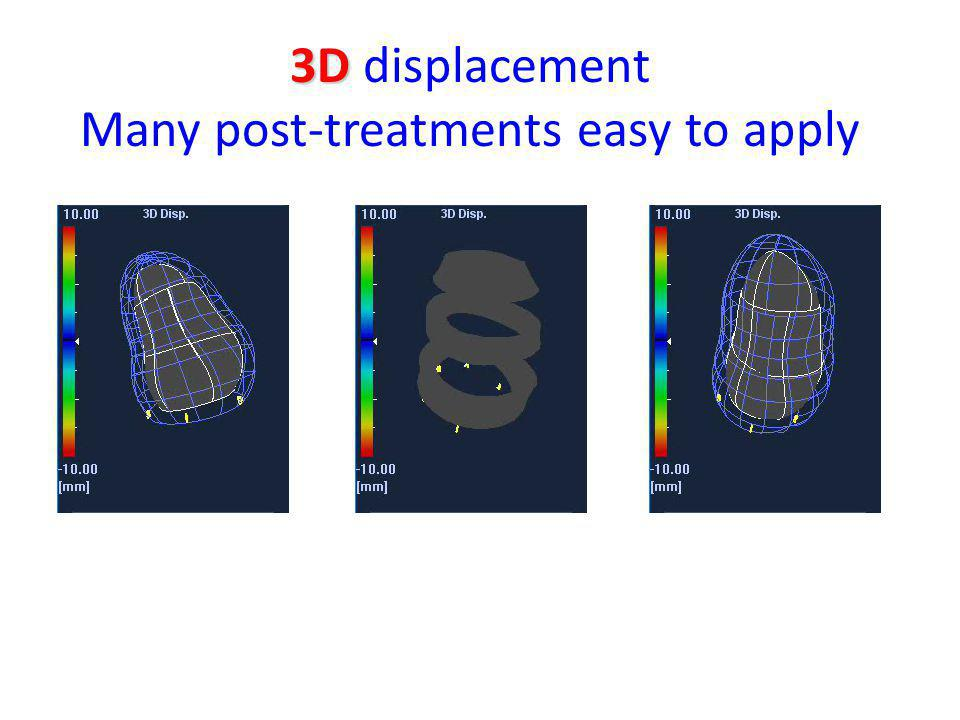 3D displacement Many post-treatments easy to apply