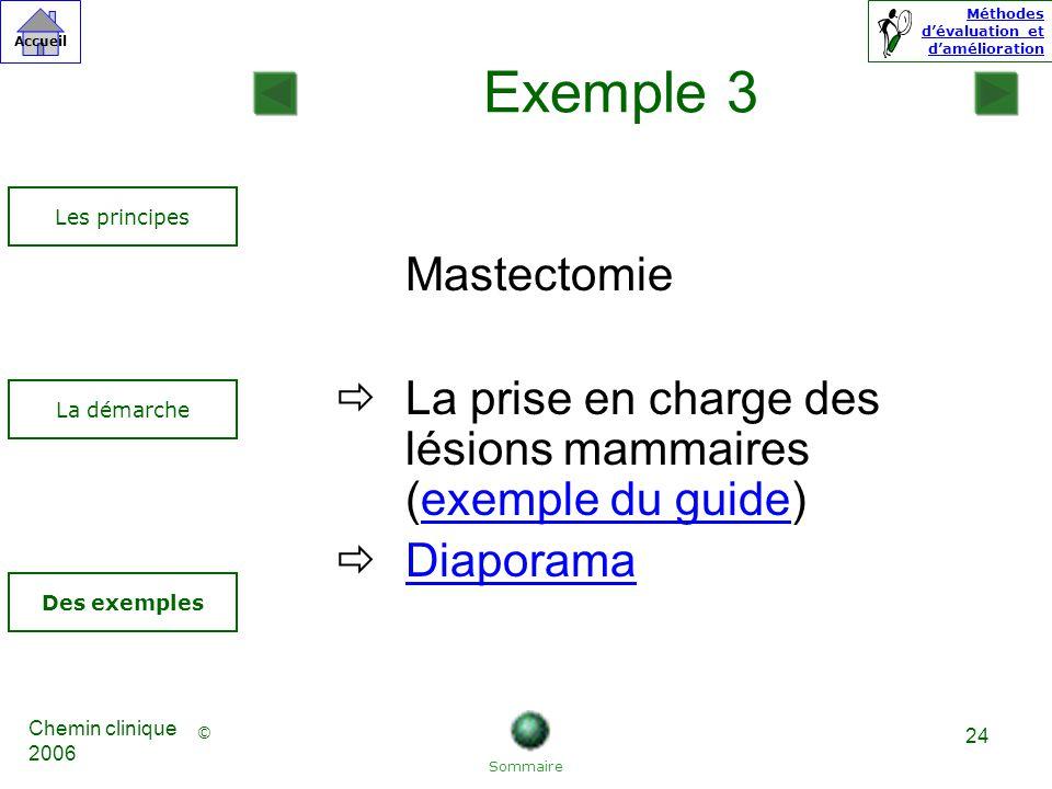 Exemple 3 Les principes. Mastectomie. La prise en charge des lésions mammaires (exemple du guide)