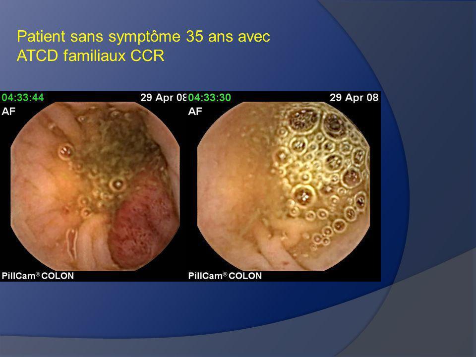 Patient sans symptôme 35 ans avec ATCD familiaux CCR