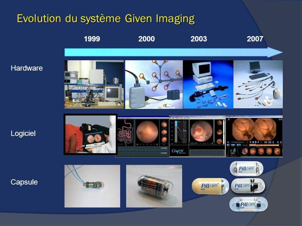 Evolution du système Given Imaging