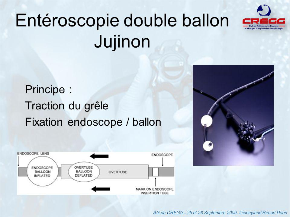 Entéroscopie double ballon Jujinon
