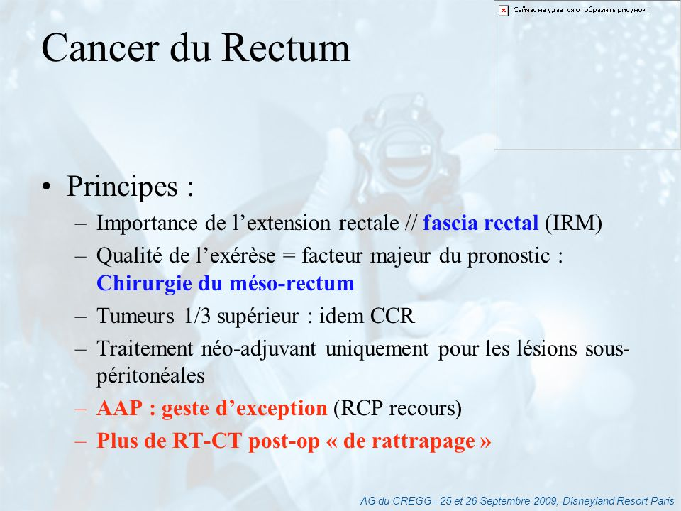 Cancer du Rectum Principes :