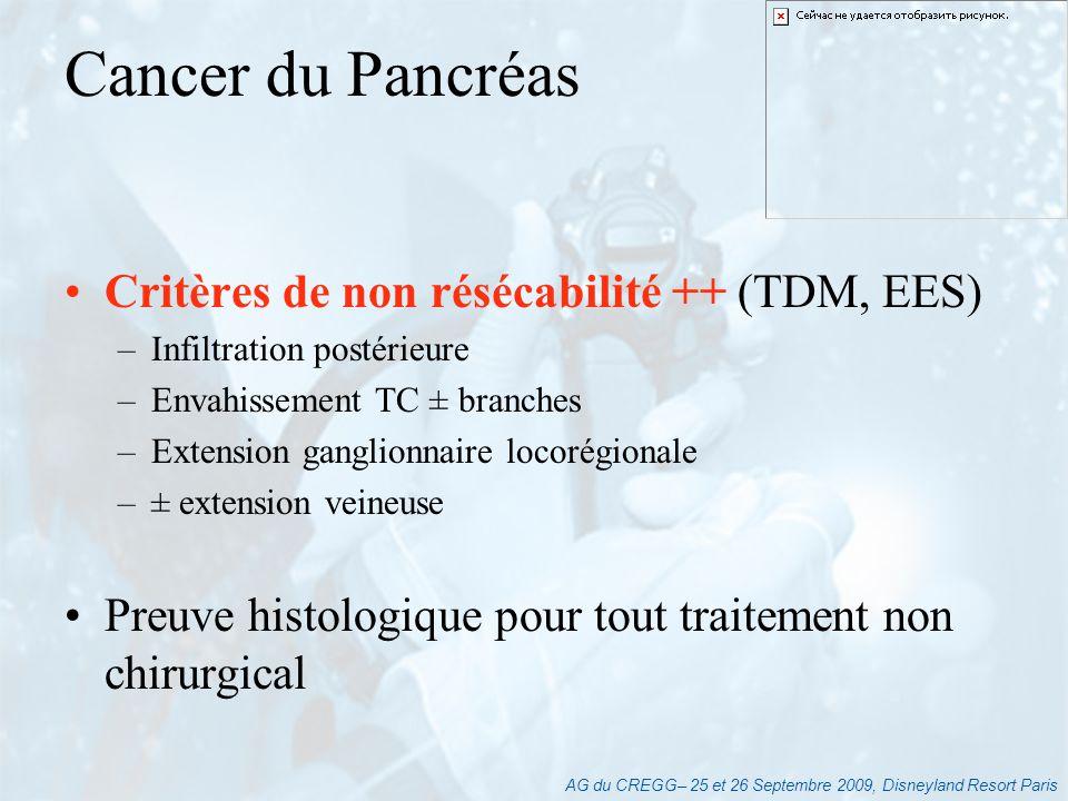 Cancer du Pancréas Critères de non résécabilité ++ (TDM, EES)