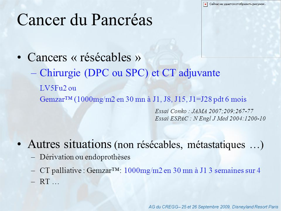 Cancer du Pancréas Cancers « résécables »