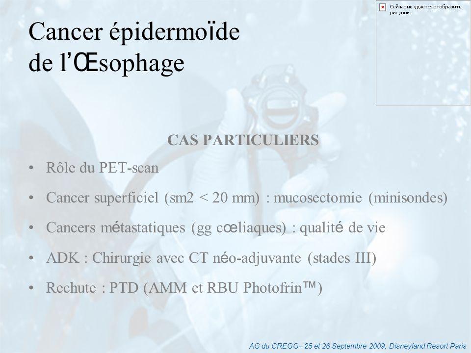 Cancer épidermoïde de l'Œsophage CAS PARTICULIERS Rôle du PET-scan
