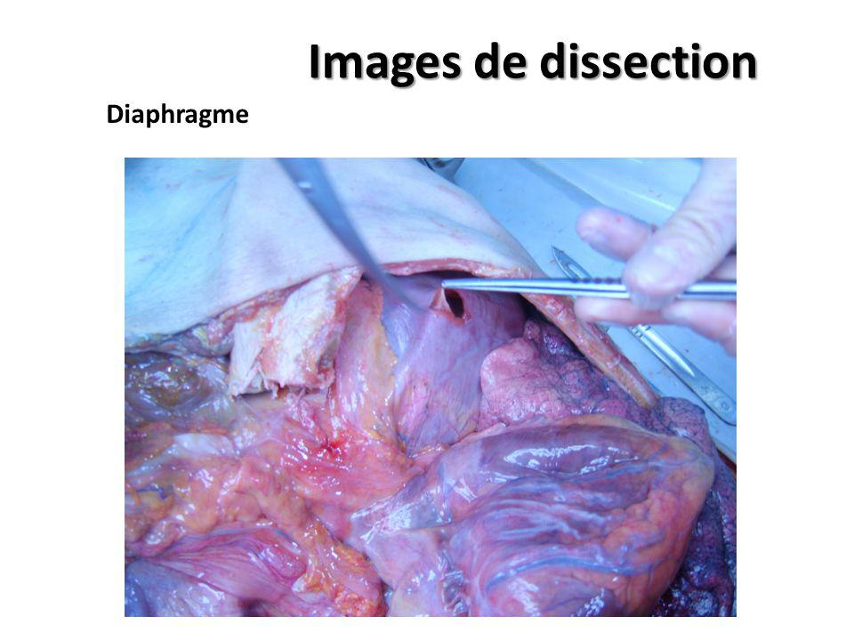 Images de dissection Diaphragme