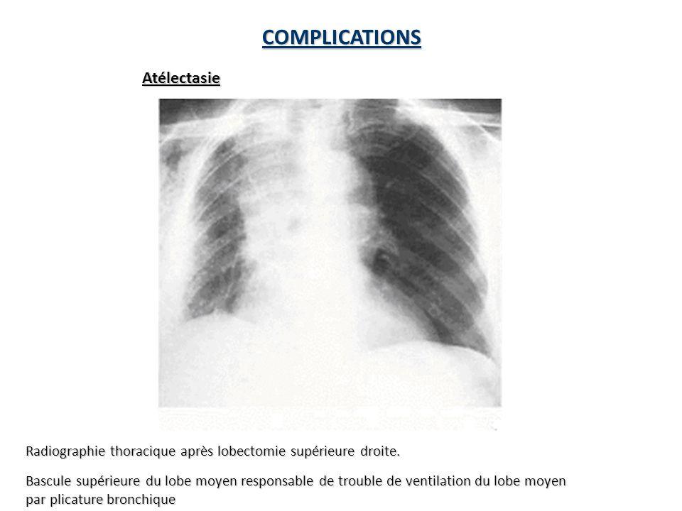 COMPLICATIONS Atélectasie
