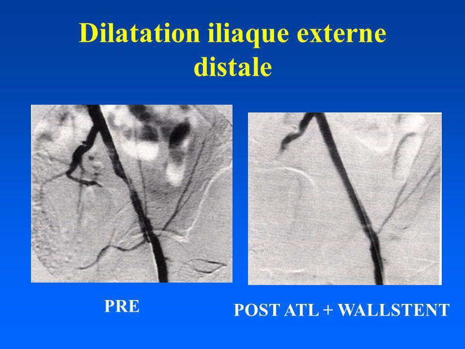 Dilatation iliaque externe distale