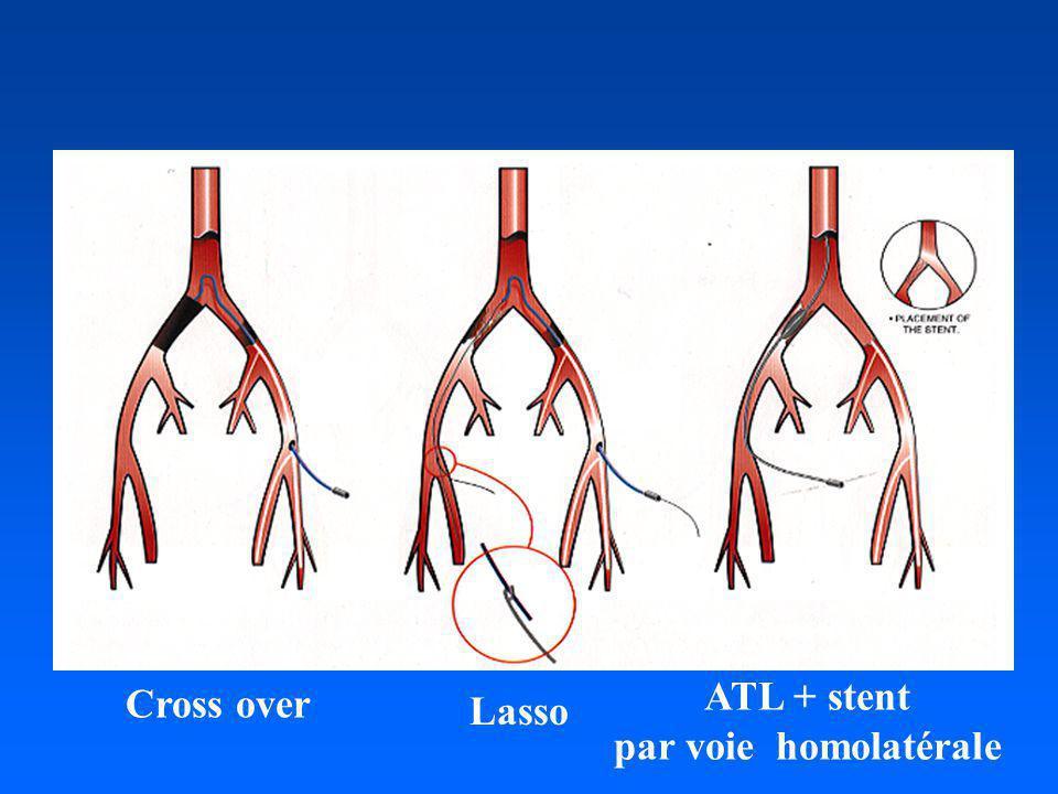 ATL + stent par voie homolatérale Cross over Lasso