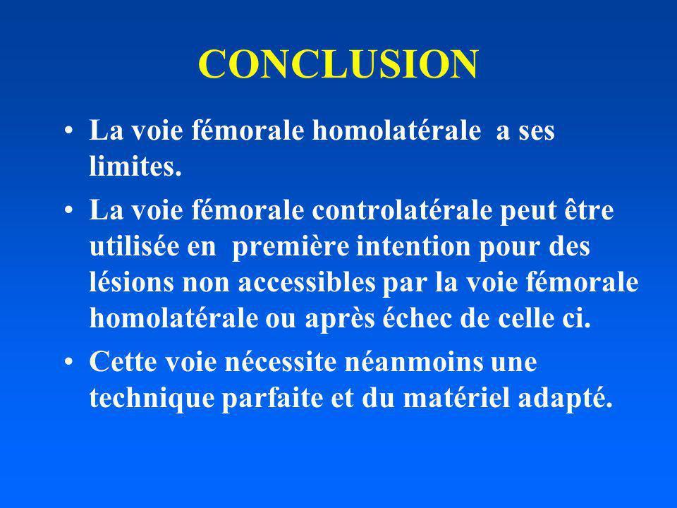 CONCLUSION La voie fémorale homolatérale a ses limites.