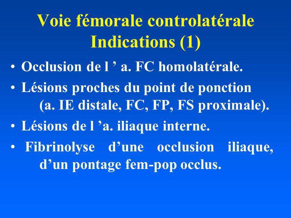 Voie fémorale controlatérale Indications (1)