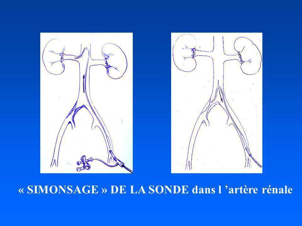 « SIMONSAGE » DE LA SONDE dans l 'artère rénale