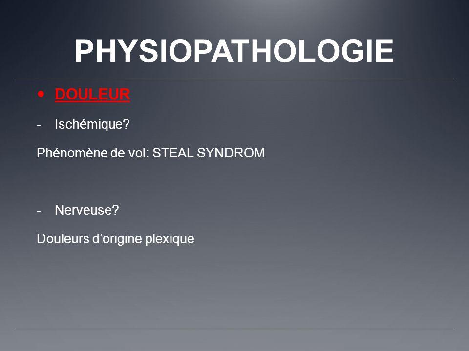 PHYSIOPATHOLOGIE DOULEUR Ischémique Phénomène de vol: STEAL SYNDROM