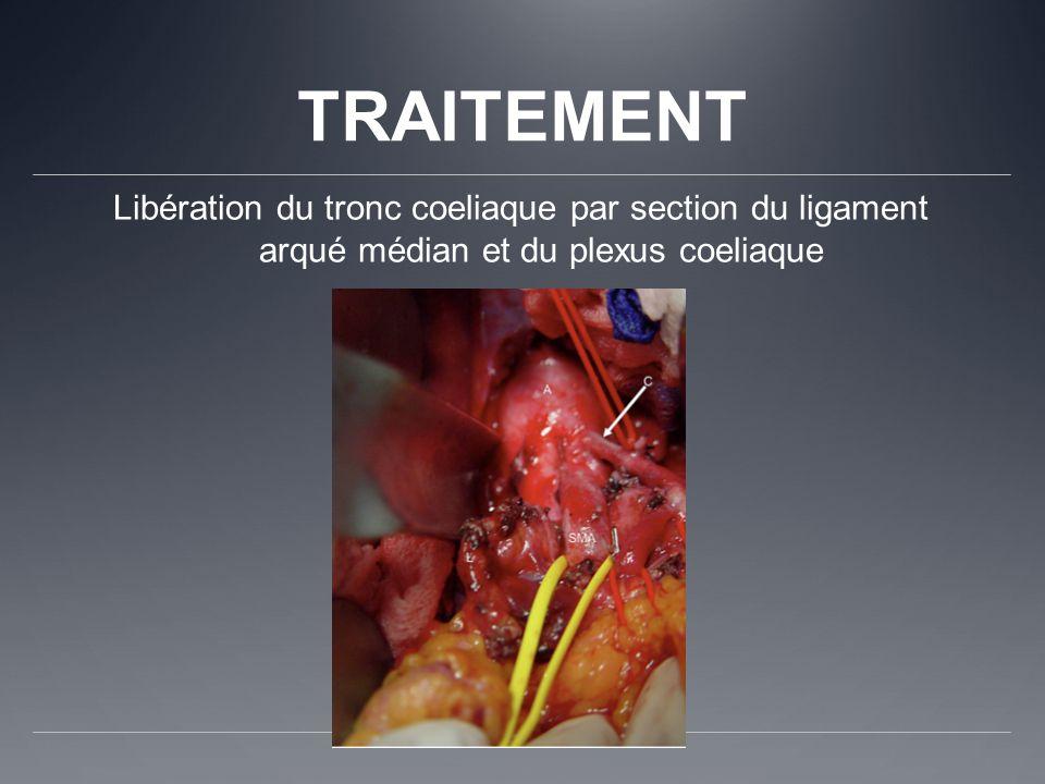 TRAITEMENT Libération du tronc coeliaque par section du ligament arqué médian et du plexus coeliaque.