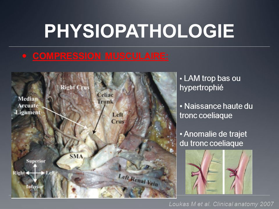 PHYSIOPATHOLOGIE COMPRESSION MUSCULAIRE: