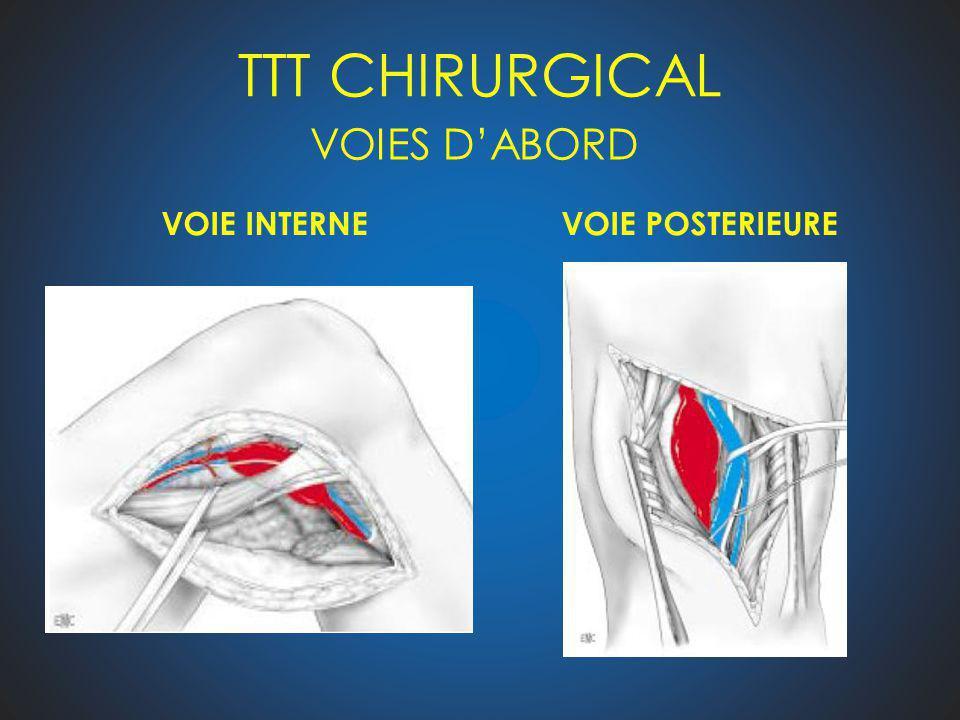 TTT CHIRURGICAL VOIES D'ABORD VOIE INTERNE VOIE POSTERIEURE