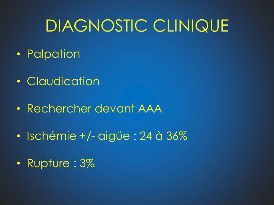 DIAGNOSTIC CLINIQUE Palpation Claudication Rechercher devant AAA