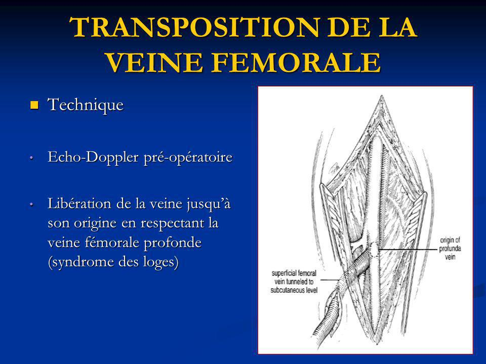 TRANSPOSITION DE LA VEINE FEMORALE