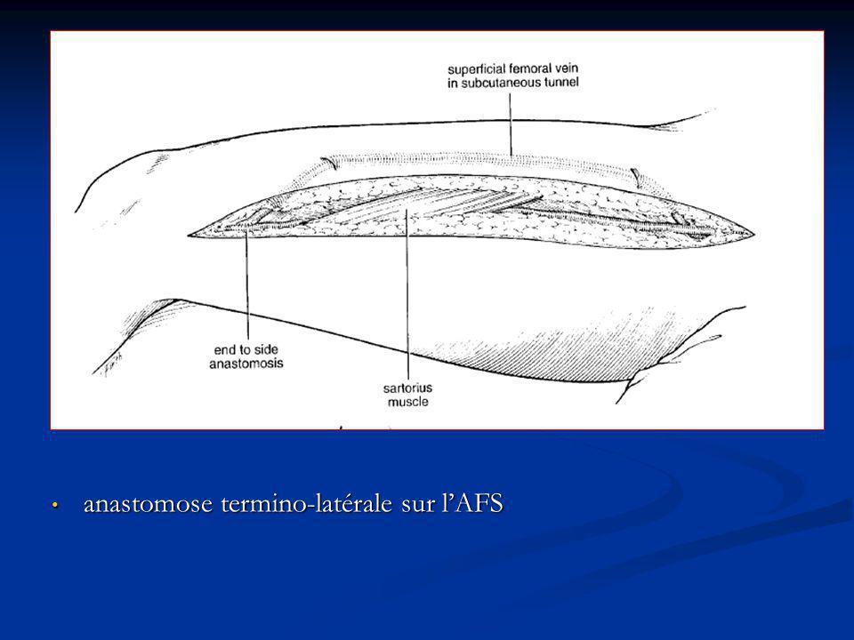 anastomose termino-latérale sur l'AFS