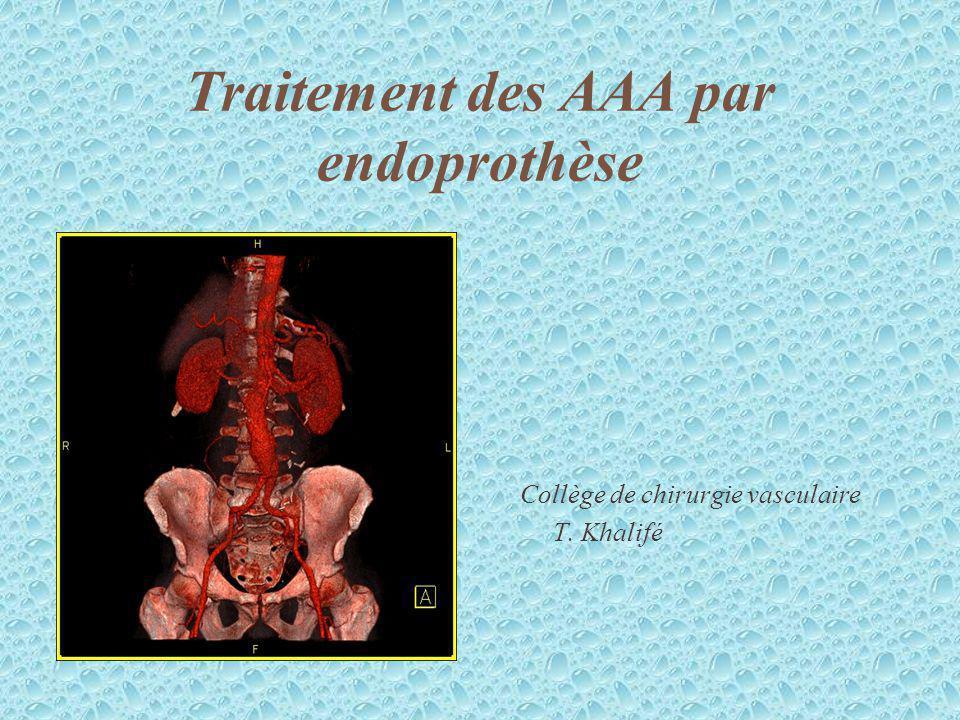 Traitement des AAA par endoprothèse