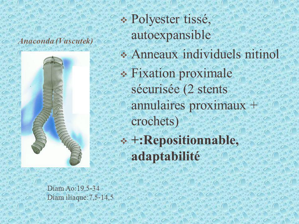 Polyester tissé, autoexpansible Anneaux individuels nitinol