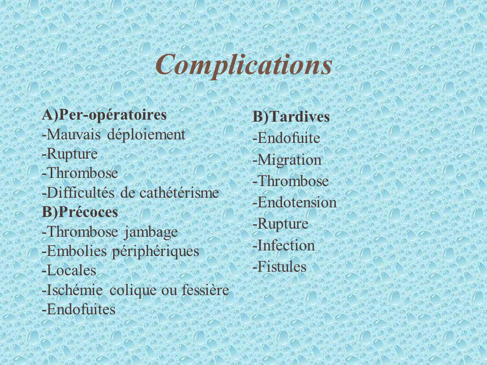 Complications A)Per-opératoires -Mauvais déploiement -Rupture