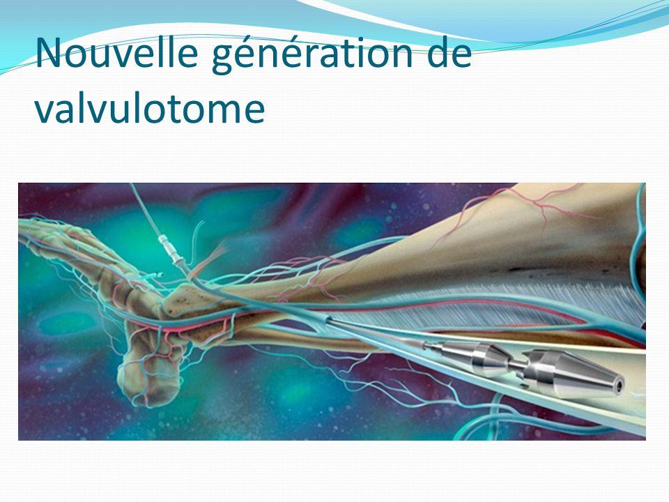 Nouvelle génération de valvulotome