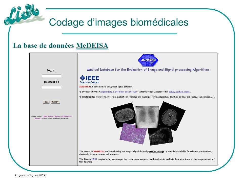 Codage d'images biomédicales