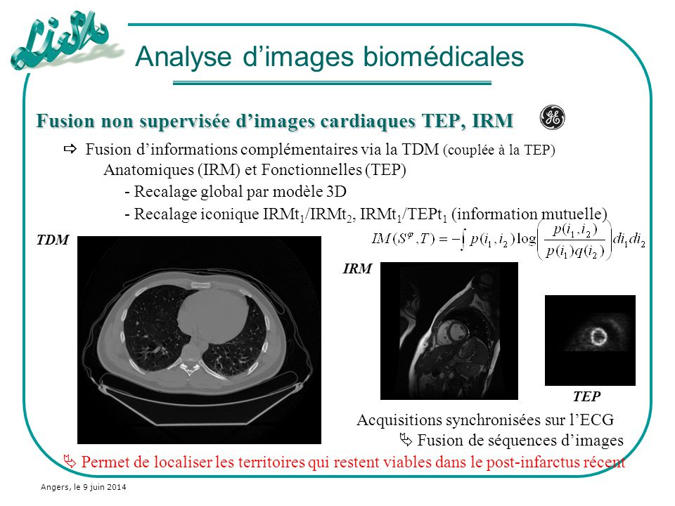 Analyse d'images biomédicales